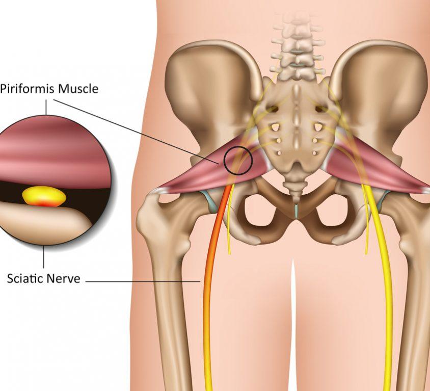Piriformis muscle | best piriformis stretch