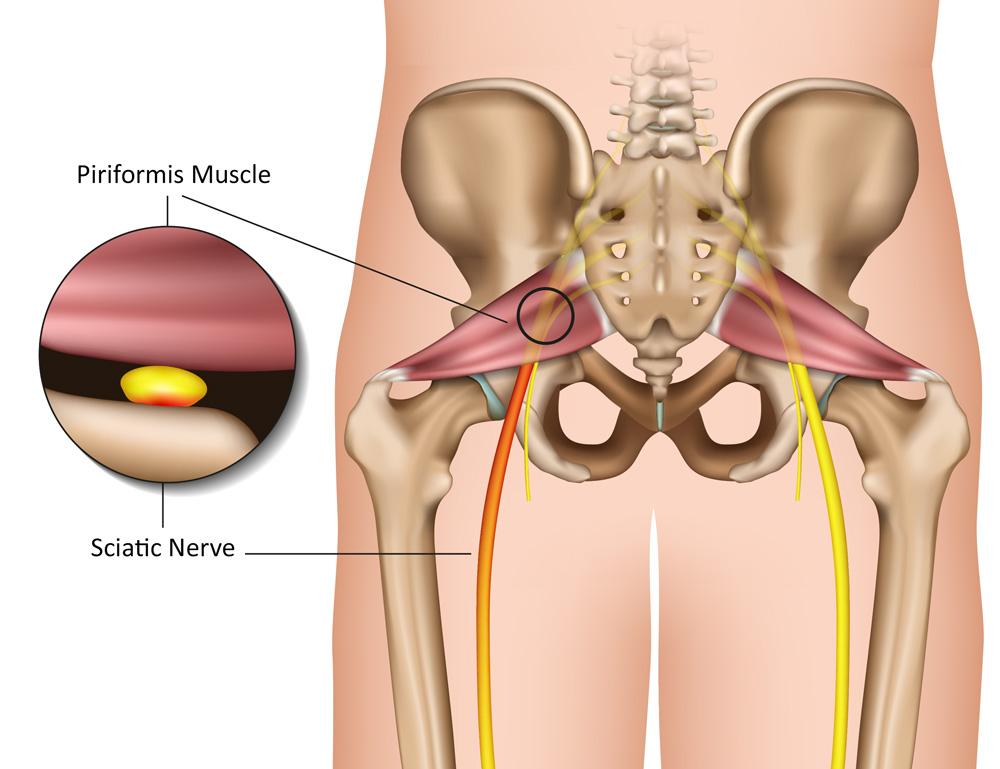 piriformis syndrome and sciatica