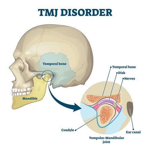 TMJ pain or Temporomandibular joint pain, TMJ Osteopathy and clicking Jaw allignment