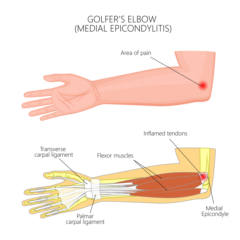 What is Golfer's elbow? golfer's elbow treatment with Osteopathy. Pain on the inside of the elbow or medial epicondylitis