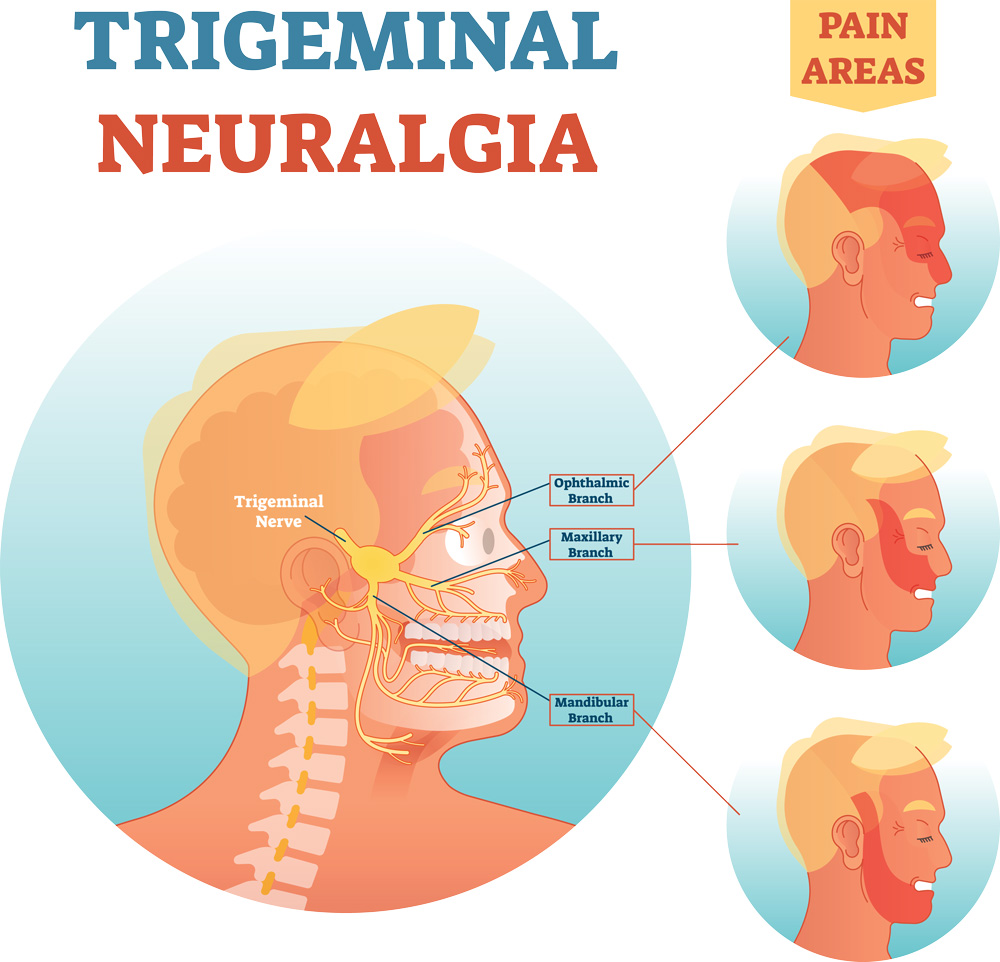Trigemnial nerve anatomy - Trigemnial nerve branches and pain areas
